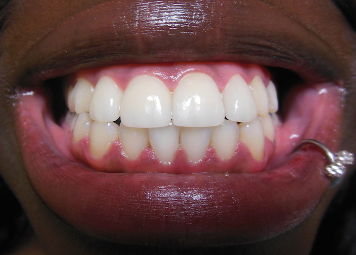 veneers-after.png