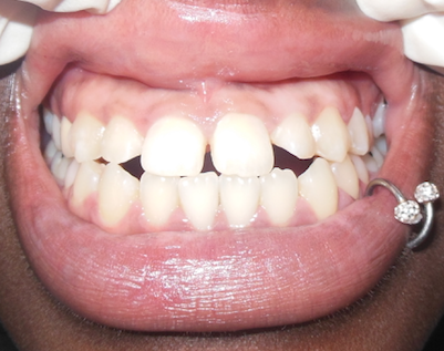 veneers-before.png